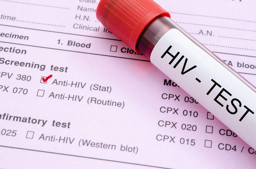 Osoby zakażone wirusem HIV są bardziej narażone na zawał serca /123RF/PICSEL