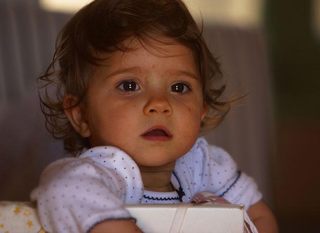 Ospa wietrzna jest jedną z typowo dziecięcych chorób zakaźnych /ThetaXstock