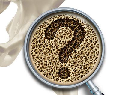 Osteoporoza: Cichy zabójca kości. Przyczyny, objawy i leczenie