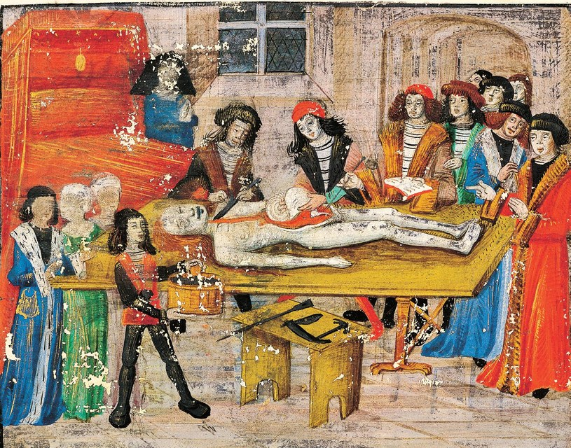 Otwarcie zwłok uchodziło w średniowieczu za zbezczeszczenie ludzkiego ciała. Dozwolone było tylko przeprowadzanie sekcji szkoleniowych w akademiach dla lekarzy Fot. Sekcja zwłok szlachcianki, Guy Chauliac, Francja, koniec XV w /Internet