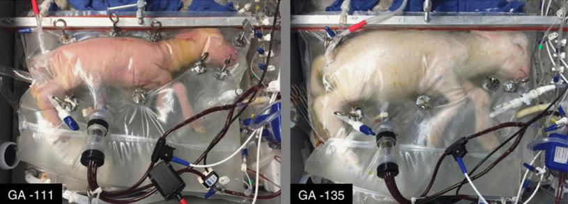 Owca w sztucznej macicy - po lewej w 111 dniu rozwoju, po prawej w 135 dniu rozwoju Fot. Magazyn Nature /materiały prasowe