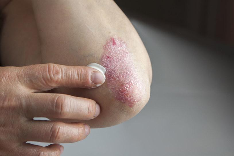 Pacjenci przyjmujący preparaty przeciwłuszczycowe powinni wnikliwie zapoznać się z treścią ulotki. Przyjmowanie medykamentów może osłabiać włosy /123RF/PICSEL