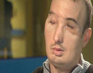 Pacjent po przeszczepie twarzy: Dostałem drugie życie