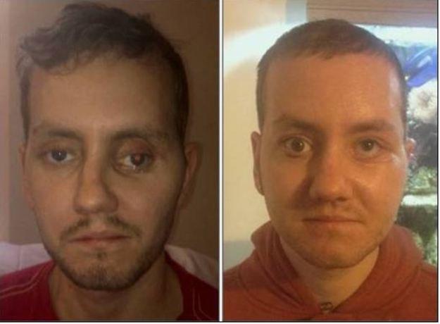 Pacjent przed i po operacji Fot. Morriston Hospital /RMF24