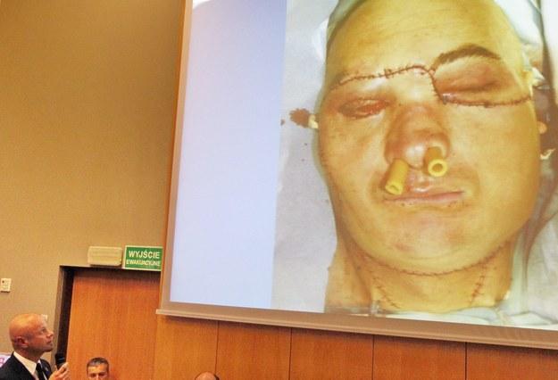 Pacjent przeszedł przeszczep, który uratował mu życie /Andrzej Grygiel /PAP
