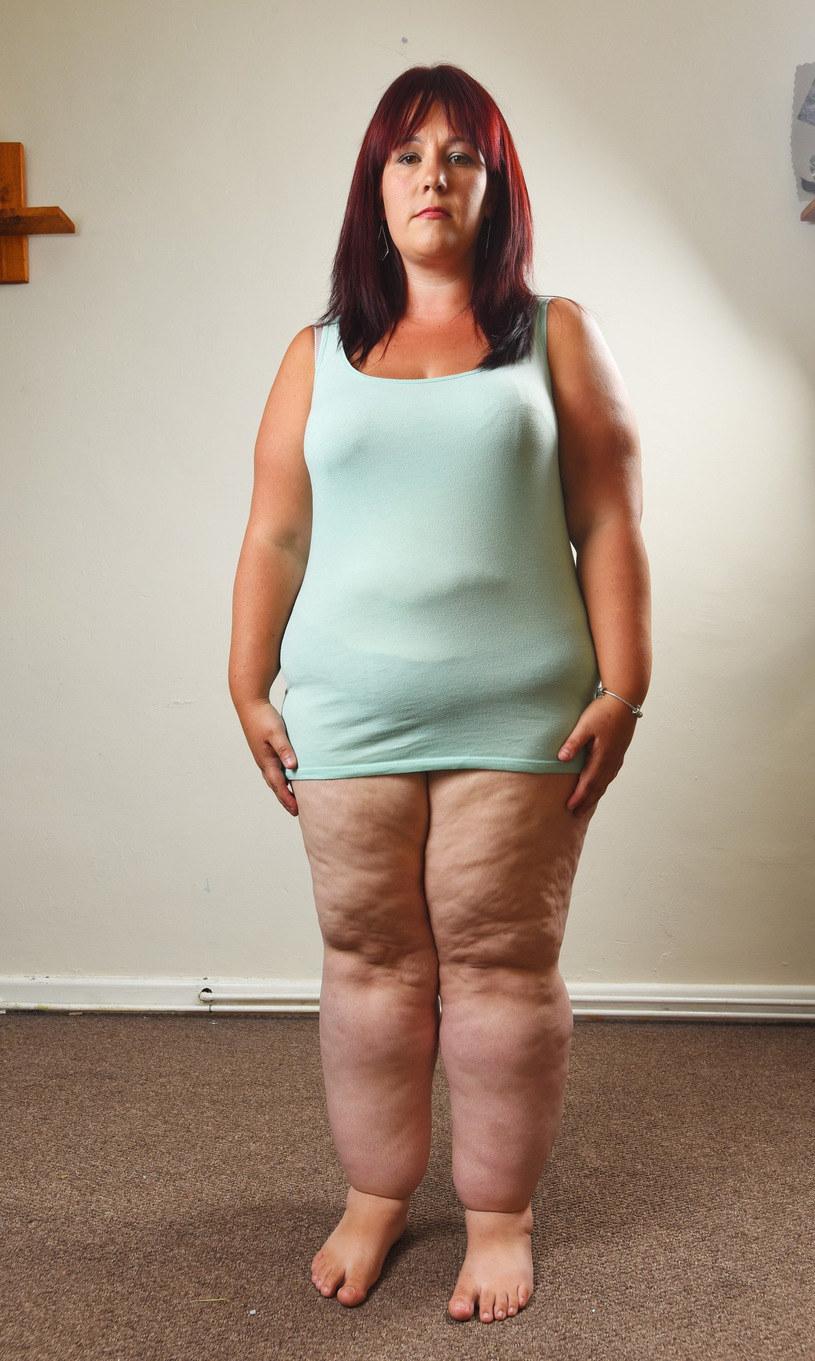 Pacjentka o sylwetce typowej dla tej jednostki chorobowej /Solent News & Photo Agency /East News