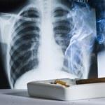 Paczki papierosów przemówiły! Zniechęcają do palenia