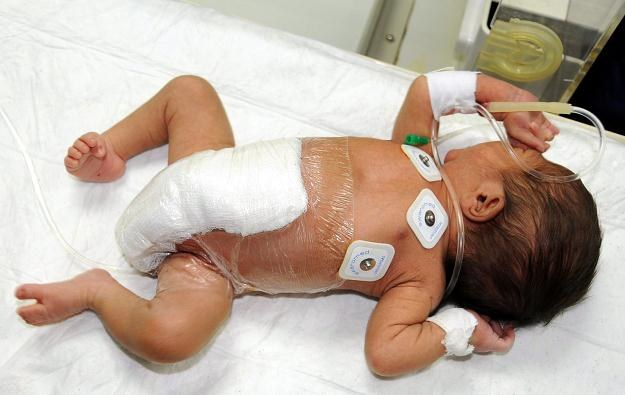 Pakistańscy lekarze pomyślnie przeprowadzili operację /PAP/EPA