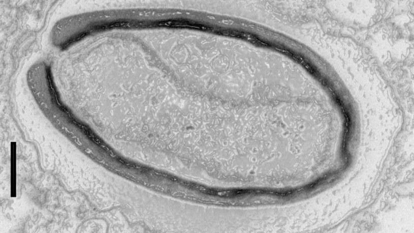 Pandorawirusy są tak duże, że przez długi czas mylono je z bakteriami /materiały prasowe