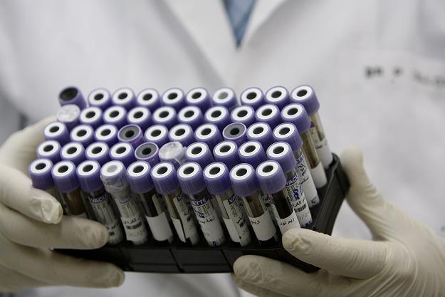 Parlament Europejski rozszerzył listę substancji rakotwórczych /AFP