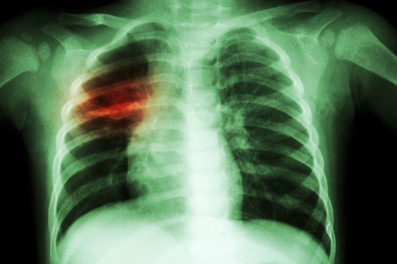 Pasożyty a zapalenie płuc /©123RF/PICSEL