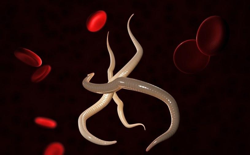 Pasożyty często atakują organizm /123RF/PICSEL
