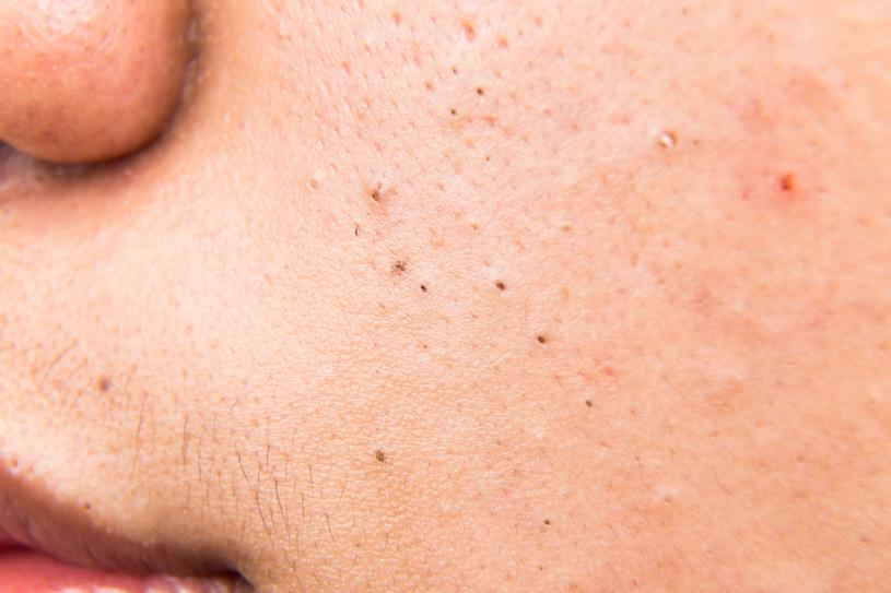 Pasożyty skórne często mylone są z innymi chorobami dermatologicznymi /123RF/PICSEL