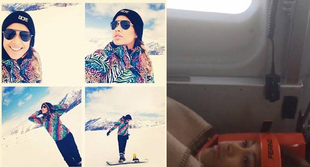 Patricia Kazadi przed i po wypadku - fot. Instagram /
