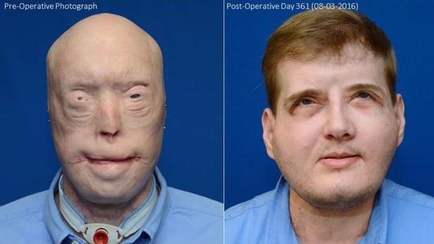 Patrick Hardison - przed i po operacji /materiały prasowe