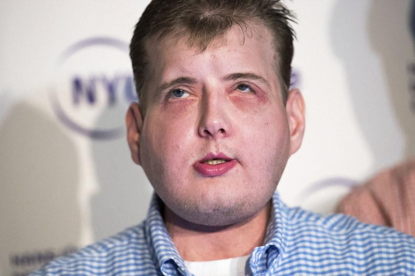 Patrick Hardison przeszedł przeszczep twarzy /Drew Angerer / GETTY IMAGES NORTH AMERICA / Getty Images via AFP /AFP