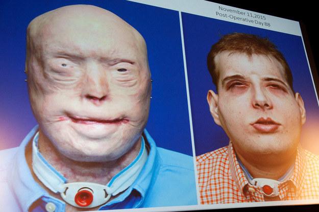Patrick przed i po operacji przeszczepienia twarzy /AFP