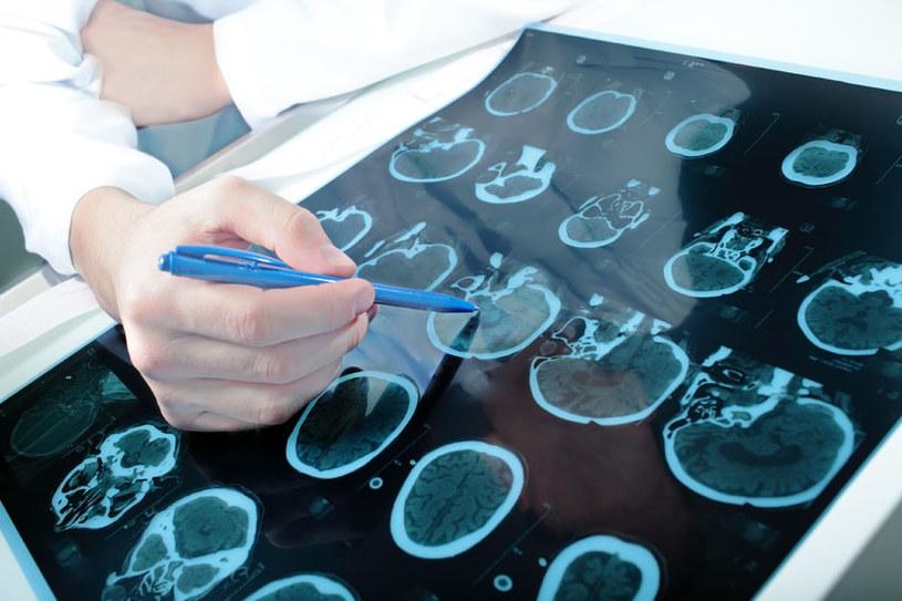 """Patrząc na spustoszenia, jakich dokonują nowotwory, ciężko wyobrazić sobie, by był to """"tryb awaryjny"""" naszego organizmu /123RF/PICSEL"""