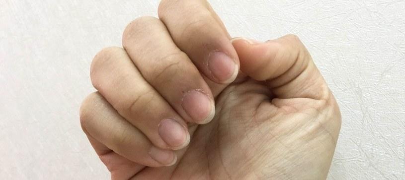 Paznokcie dużo mówią o kondycji /©123RF/PICSEL