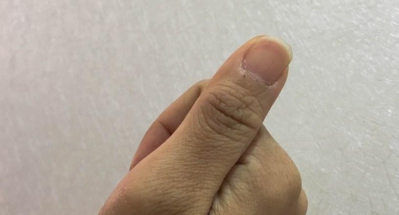 Paznokcie zdradzają stan zdrowia /©123RF/PICSEL