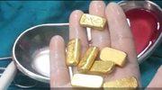 Pechowy przemytnik połknął 12 sztabek złota