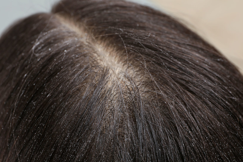 Peeling skóry głowy może rozwiązać wiele problemów z włosami /123RF/PICSEL