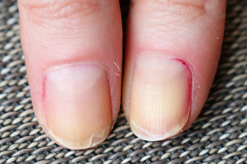 Pękające paznokcie mogą świadczyć o dużych niedoborach witamin /123RF/PICSEL