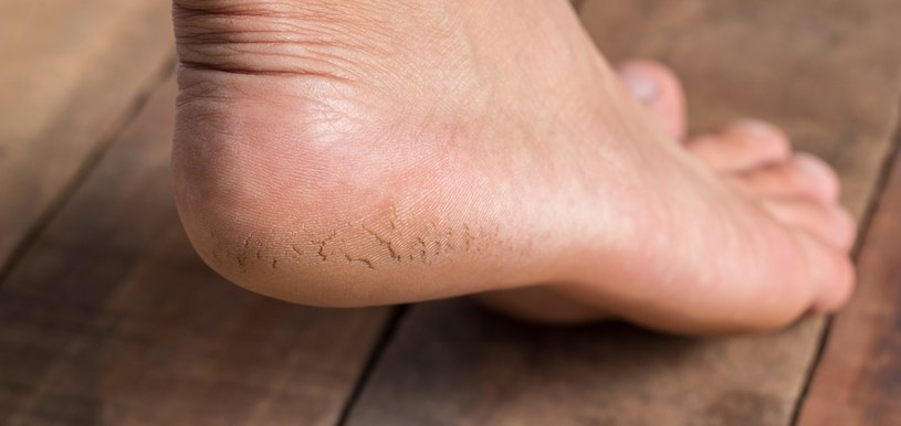 Pękające pięty bolą /©123RF/PICSEL