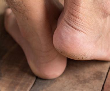 Pękające pięty: Sprawdzone sposoby