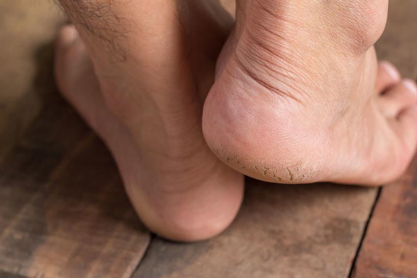 Pękające pięty /©123RF/PICSEL