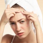 Pięć problemów ze skórą, które są efektem zaburzeń hormonalnych