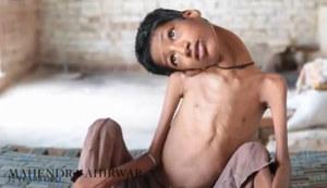 Pięćdziesięciu lekarzy nie wie, na co choruje ten chłopiec