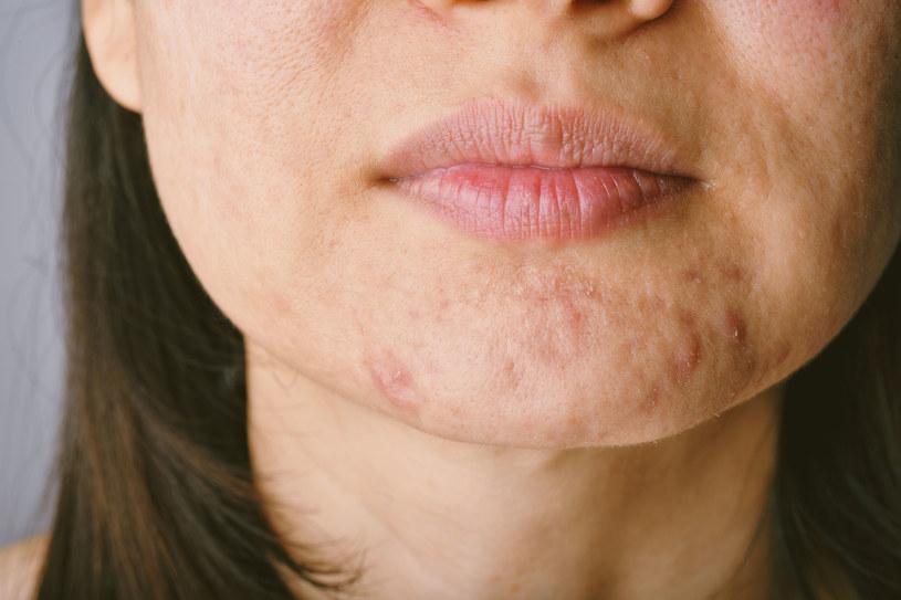 Pielęgnacja skóry tłustej powinna opierać się na skrupulatnym oczyszczaniu, ale i nawilżaniu /123RF/PICSEL