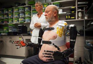 Pierwszy pacjent już steruje dwoma bionicznymi ramionami