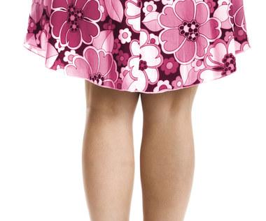 Pietruszka – naturalny środek na opuchnięte nogi