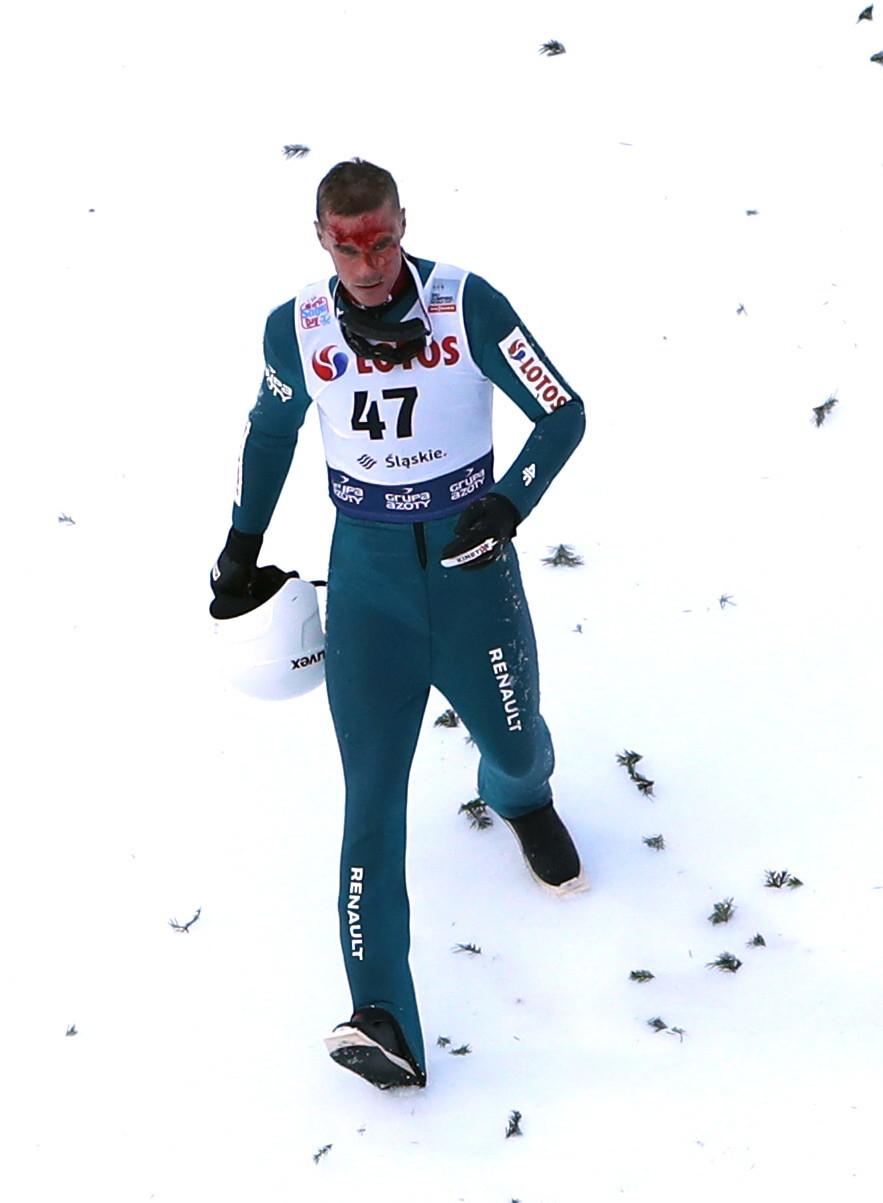 Piotr Żyła po upadku miał całą zakrwawioną twarz / Grzegorz Momot    /PAP