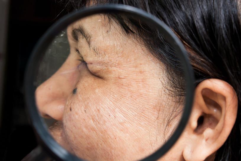 Plamki na twarzy mogą świadczyć o chorobie, dlatego warto im się przyglądać i skonsultować się z lekarzem /123RF/PICSEL