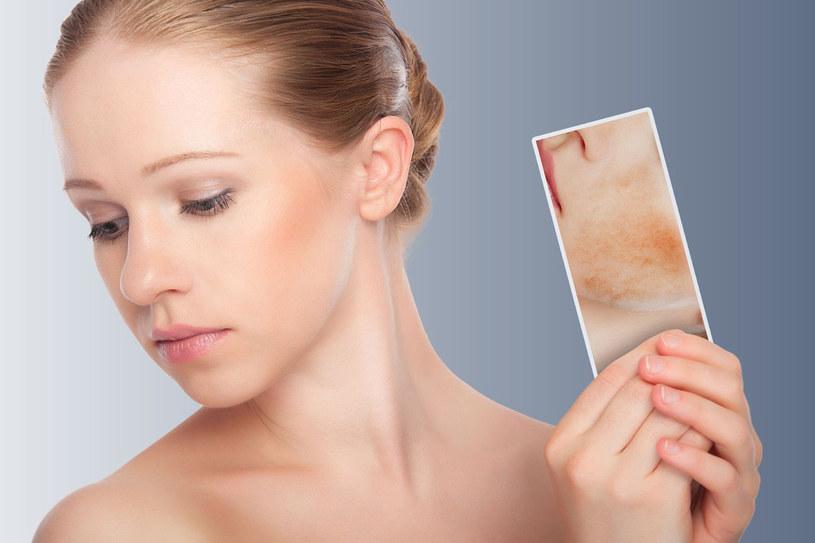 Plamy na twarzy mogą być wywołane nie tylko czynnikami zewnętrznymi, ale i zmianami hormonalnymi /123RF/PICSEL