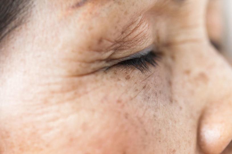 Plamy wątrobowe pojawiają się z wiekiem, ale czasem mogą wystapić u młodszych /123RF/PICSEL