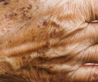 Plamy wątrobowe: Przyczyny, objawy i usuwanie