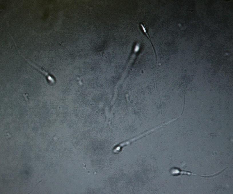 Plemniki pod mikroskopem; zdj. iilustracyjne /Piotr Gajek /East News