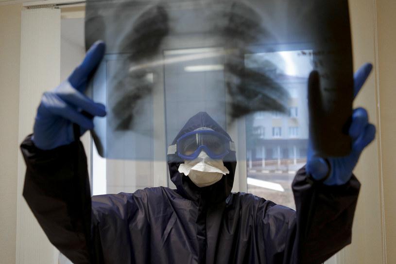 Płuca osoby chorej na covid, zdjęcie ilustracyjne /Anton Vergun/SPUTNIK Russia /East News