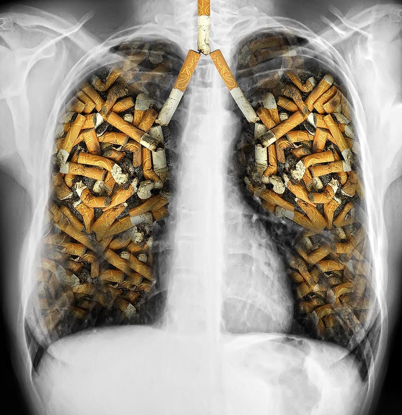 płuca palacza /© Photogenica