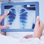 Płuca po COVID-19: Czegoś takiego medycy nie widzieli