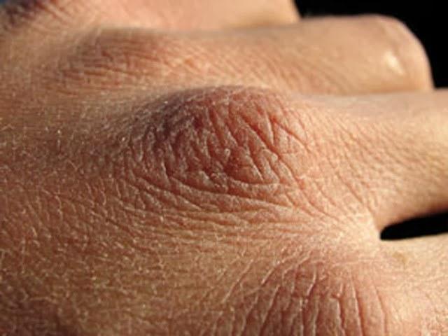 Płyn do dezynfekcji wysusza skórę /© Photogenica