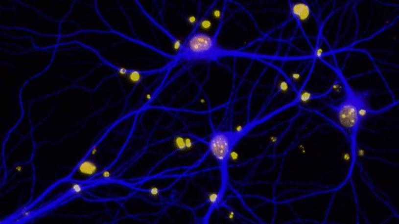 Płytki amyloidowe w mózgu redukują poziom BRCA1 (czerwone) w neuronach (niebieskie) /materiały prasowe