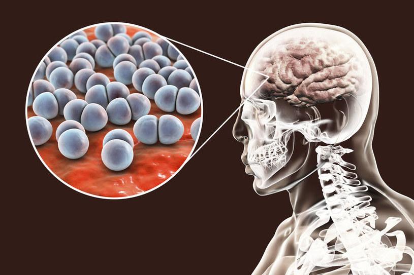 Pneumokiki atakują mózg /©123RF/PICSEL