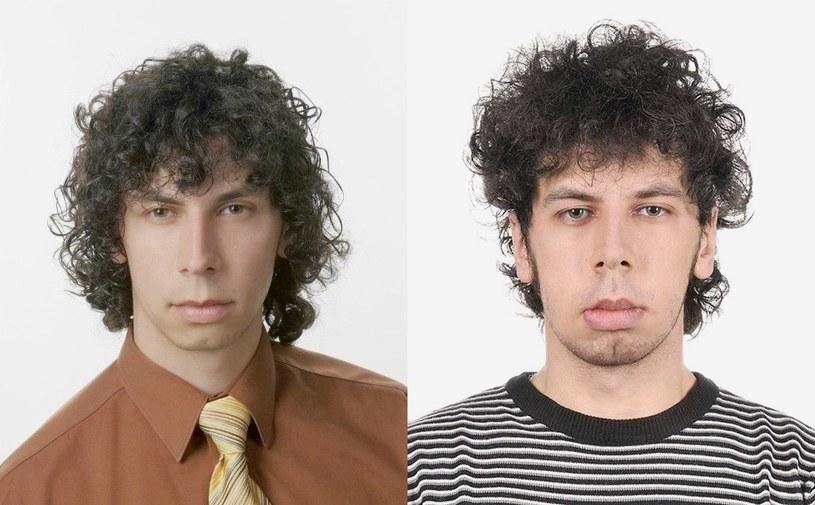 Po lewej: Michał przed ujawnieniem się choroby; po prawej: zdjęcie sprzed kilku miesięcy. Dziś stan mięśni jego twarzy nie pozwala na mówienie i jedzenie /archiwum prywatne