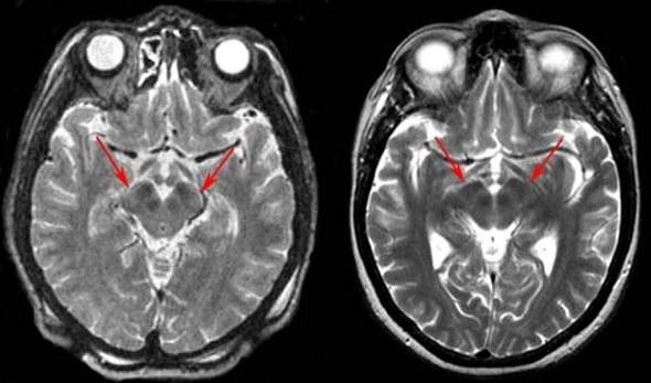 Po lewej: Obraz mózgowia pacjenta z chorobą Parkinsona. Strzałki wskazują na charakterystyczne dla schorzenia zwężenie istoty zbitej substancji czarnej. Po prawej: obraz mózgu zdrowego człowieka w tym samym wieku. Fot. University of Virginia /Kosmonauta