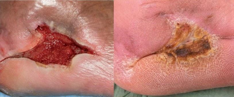 Po lewej rana przed rozpoczęciem leczenia, po prawej po zastosowaniu opatrunków z larwami /materiały prasowe